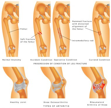 Fractures of Femur