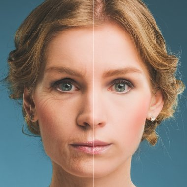 Portrait of a woman before and after botox.