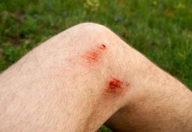 Knee injury after a fall from a bicycle stock vector
