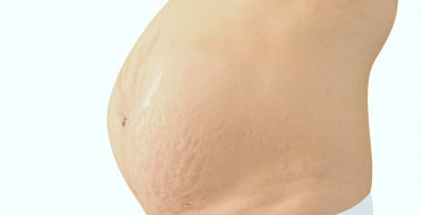 Closeup of a pregnant belly with stretch marks.
