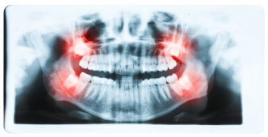 Panoramic x-ray image of teeth and mouth with all four molars ve