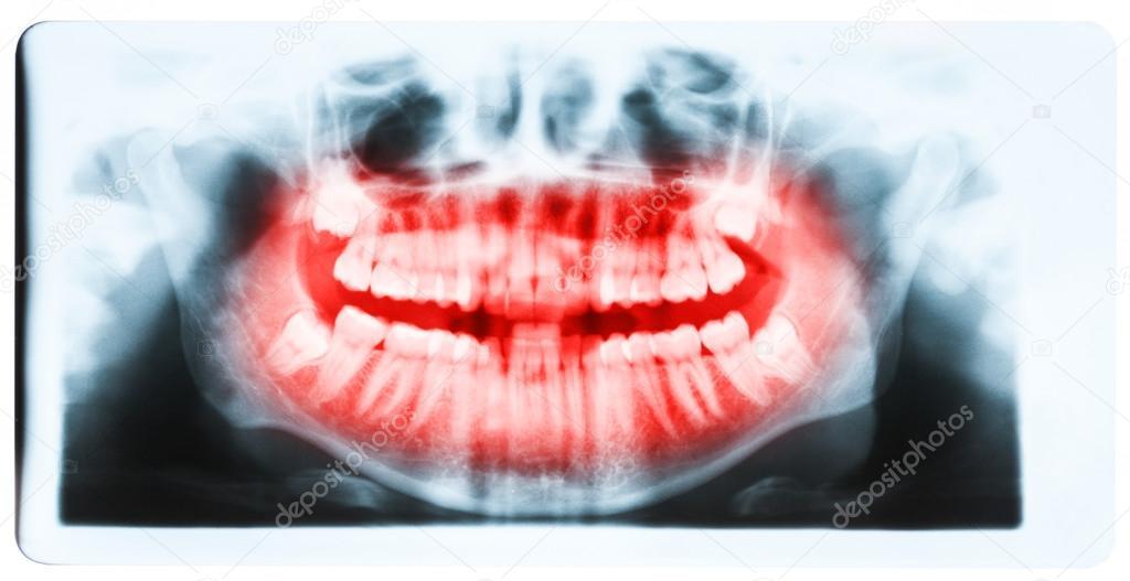 radiografía panorámica de los dientes y la boca con los cuatro ...
