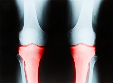 X-ray of a senior male right and left knee showing tibia and fib
