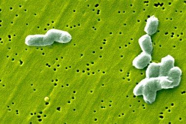 Salmonella infantis bacteria