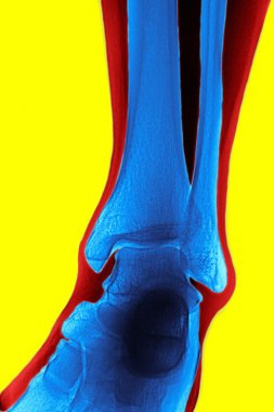 X-ray of the tibia