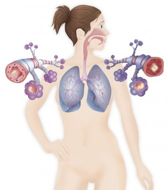 Depiction of a healthy bronchial tube