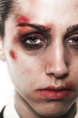Beaten up girl close-up