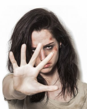 Beaten up girl asking to stop with strong look