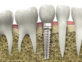 Fotografie Dental implant