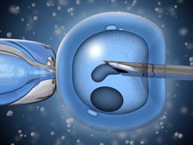 Artificial insemination