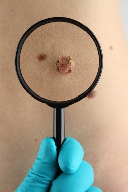 Birthmark. Dermatologist examines mole close up