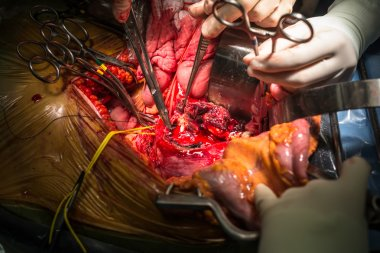 Open abdominal aortic aneurysm and stop bleeding