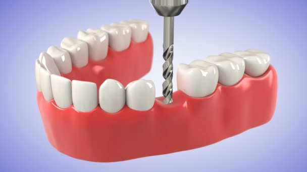 Installation process of dental implant. HD