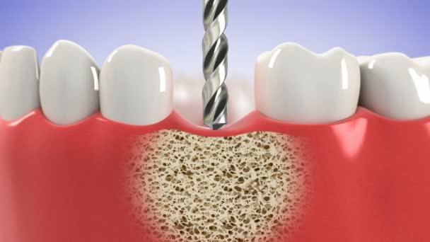 Postup instalace zubní implantát. HD