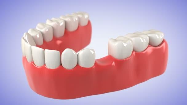 Postup instalace zubní můstek. HD