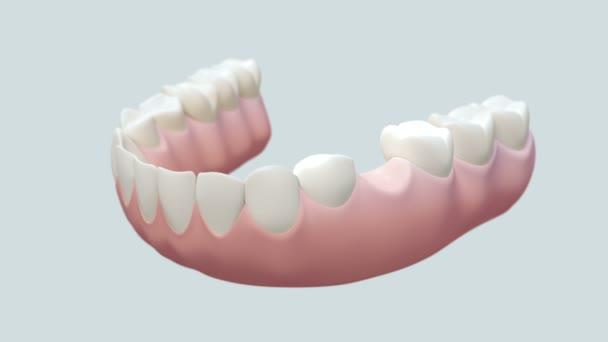 zubní můstek bílá