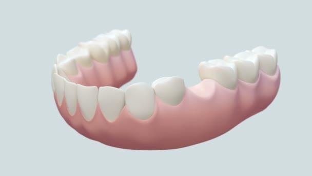 Dental Implant Bright