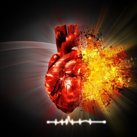 Photo for Heart attack. abstract medical and health care backgrounds - Royalty Free Image