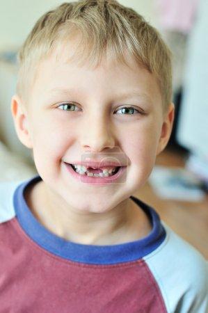 Photo pour Petit garçon en montrant qu'il a perdu la dent de lait - image libre de droit