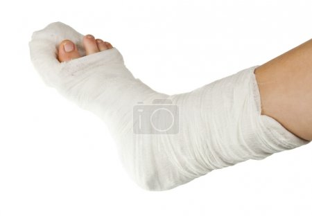 leg in a plaster isolated