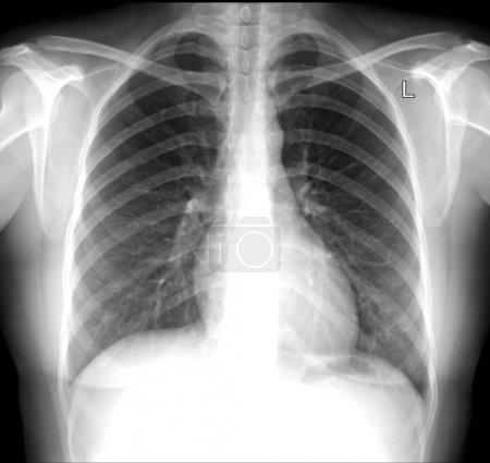 radiographs skull and cervical vertebrae