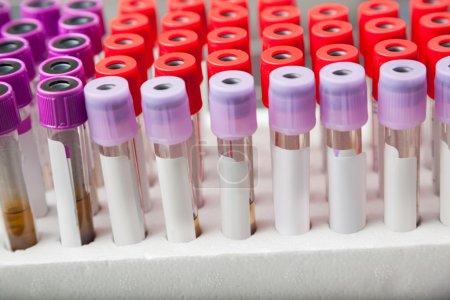 Rack Of Test Tubes