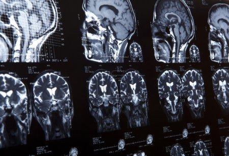 MRI of human brain