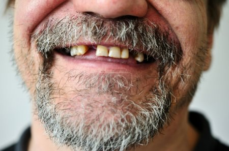 man's face with a smiling toothless