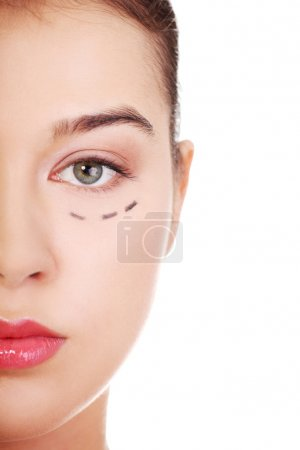 Woman marked out for cosmetic surgery.