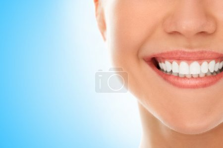 Photo for A woman is smiling while being at the dentist - Royalty Free Image