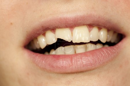 Photo for Woman with beautiful mouths and broken tooth - Royalty Free Image