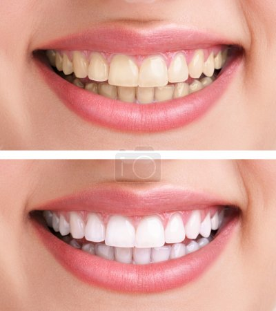 Photo for Whitening - bleaching treatment ,before and after ,woman teeth and smile, close up, isolated on white - Royalty Free Image