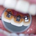 Dental mirror showing braces...