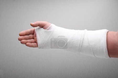 Photo for Broken arm bone in cast - Royalty Free Image