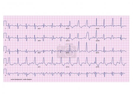 Cardiogram on the pink grid...