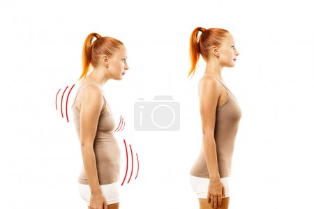 Young woman with position defect and ideal bearing on white background