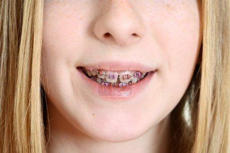 Closeup teen girl with braces