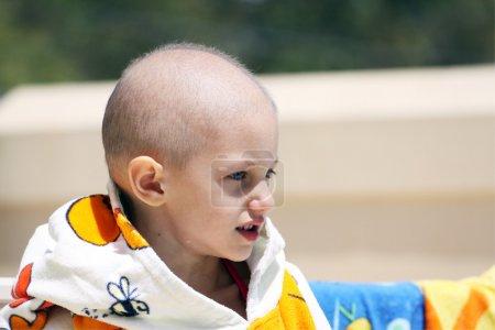Photo pour Un bel enfant caucasien avec perte du cancer et des cheveux en raison de la chimiothérapie - image libre de droit