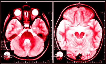 Red X-ray image of brain