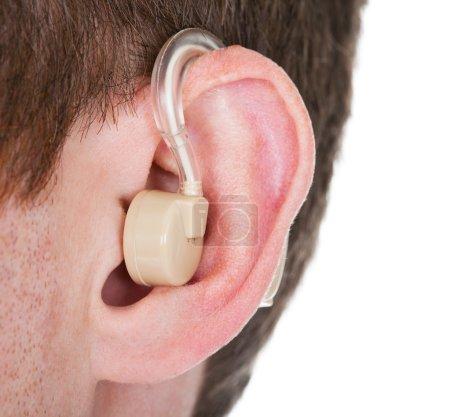 Photo pour Gros plan de la prothèse auditive sur l'oreille de l'homme - image libre de droit