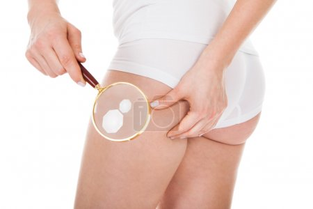 Woman Checking Cellulite With Magnifying Glass