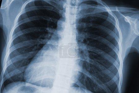 chest xray scan