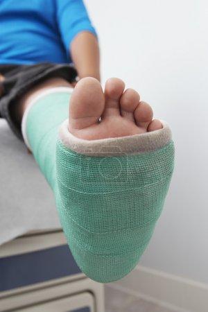 Boy's Leg In Plaster Cast