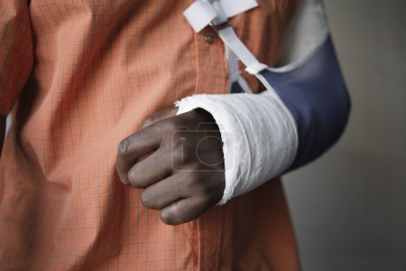 Photo for Man with broken arm, close-up of cast - Royalty Free Image