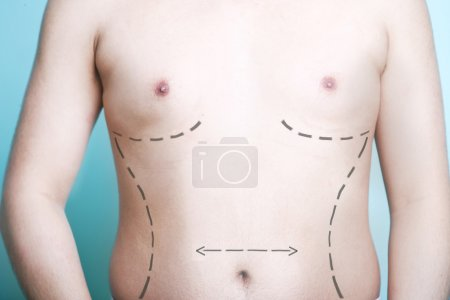 Body with plastic surgery line markings