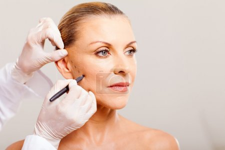 Photo pour Chirurgien esthétique tracer des lignes sur le visage de la femme âgée pour la chirurgie plastique gros plan - image libre de droit