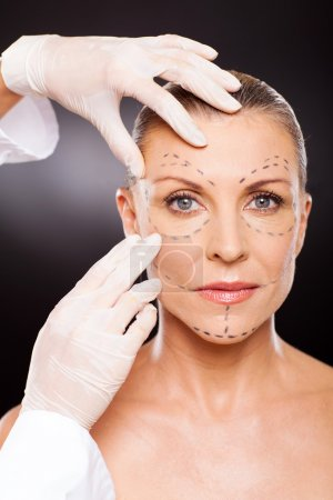 Doctor preparing middle aged woman for face lifting surgery