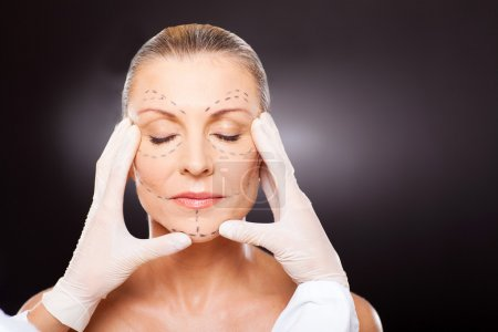 plastic surgeon checking middle aged woman face