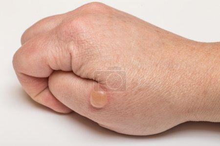 Blistered skin