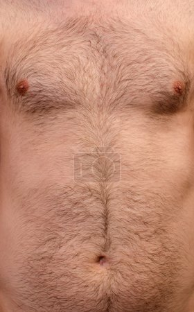Hairy skin background
